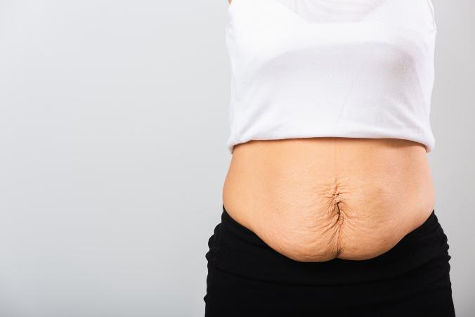 After-Baby-Bauch Mama mit hängendem Bauch