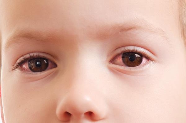 Baby mit geröteten Augen