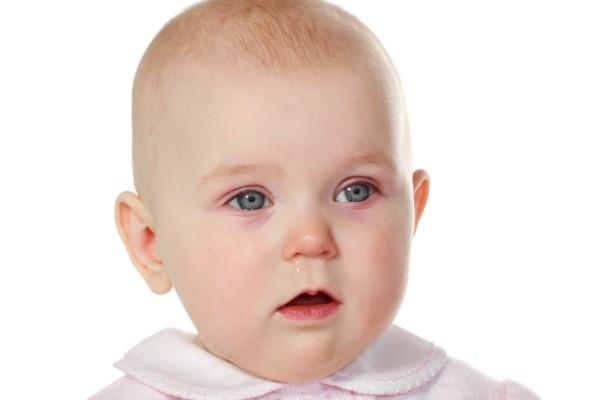 Baby hat rote Augen
