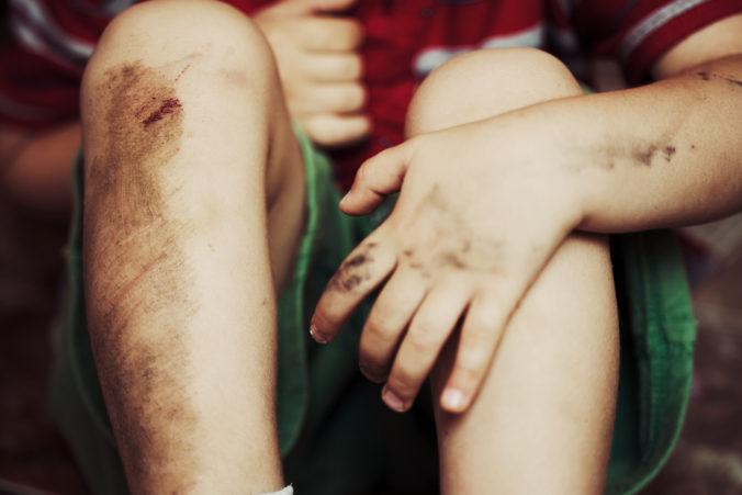 Kind mit Schürfwunde am Knie