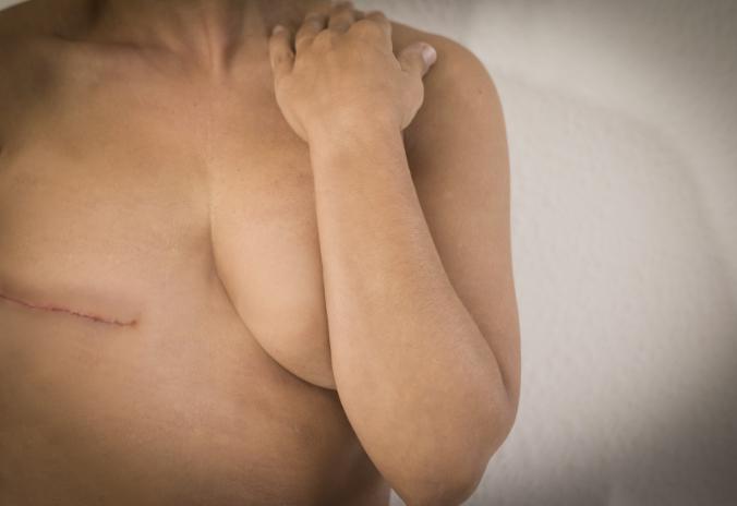 Brustkrebs Beispiel
